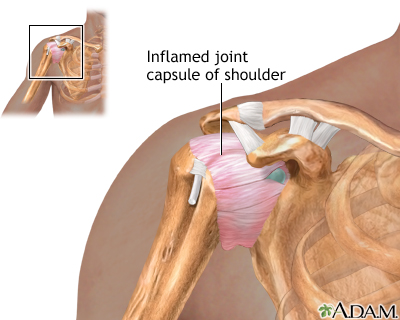 Shoulder joint inflammation