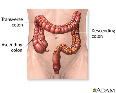 Large intestine: MedlinePlus Medical Encyclopedia Image