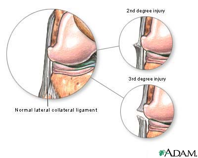 Lateral collateral ligament injury