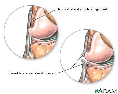 Torn lateral collateral ligament