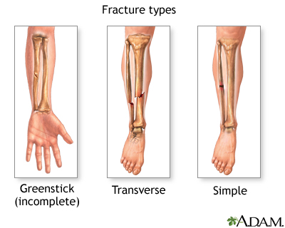 Fracture types (2): MedlinePlus Medical Encyclopedia Image