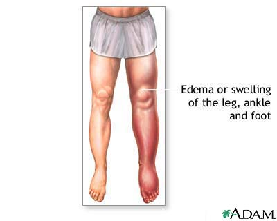 Lower leg edema: MedlinePlus Medical Encyclopedia Image