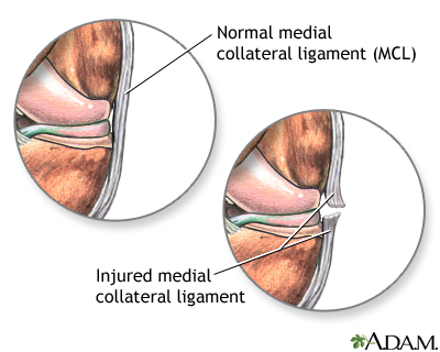 Torn medial collateral ligament: MedlinePlus Medical Encyclopedia ...
