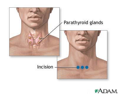 Parathyroid biopsy