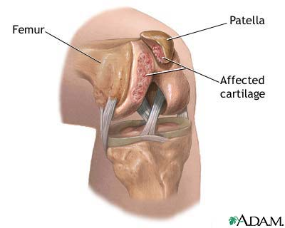 نرمی غضروف کشکک Chondromalacia of the patella