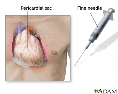 The pericardial sac surrounds and protects the heart within the chest cavity.