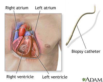 When a small piece of heart muscle tissue is needed for examination, a heart biopsy can be performed.  A catheter is carefully threaded into an artery or vein to gain access into the heart. A bioptome (catheter with jaws in its tip) is then introduced. Once the bioptome is in place, three to five small pieces of tissue from the heart muscle are removed.  The test is performed routinely after heart transplantation to detect potential rejection. It may also be performed when cardiomyopathy, myocarditis, cardiac amyloidosis, or other disorders are suspected.