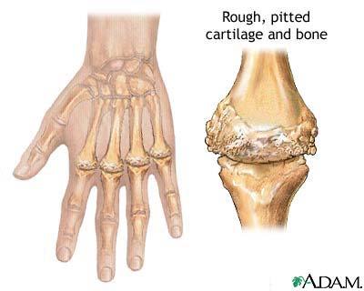 Осложнения: Без правильного лечения подверженный артрозу сустав не...