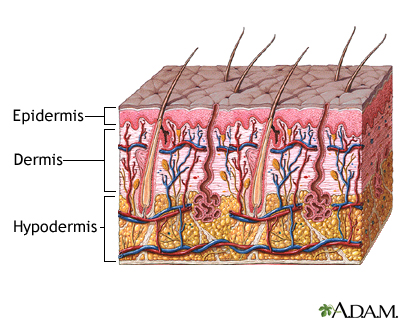 Skin layers: MedlinePlus Medical Encyclopedia Image