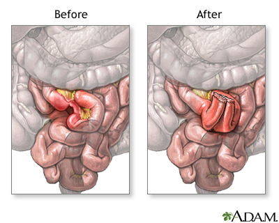 Before and after small intestine anastomosis