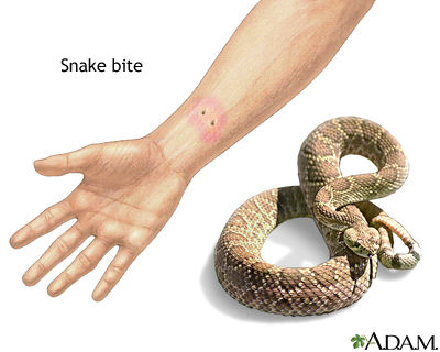 Snake bite: MedlinePlus Medical Encyclopedia Image