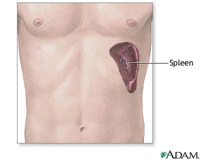 Spleen Medlineplus Medical Encyclopedia Image