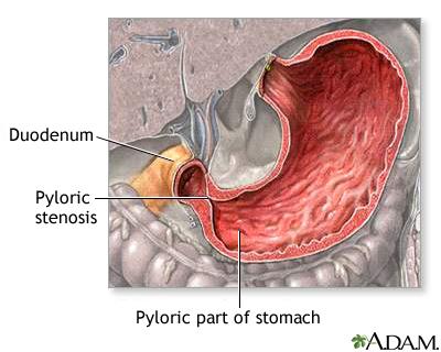 Pyloric stenosis