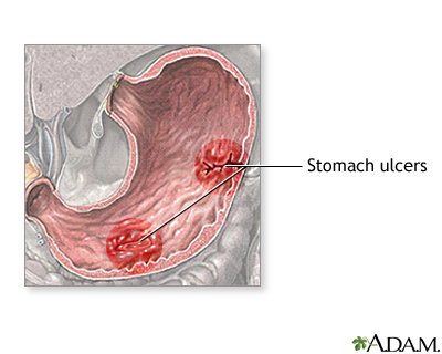 Stomach disease or trauma
