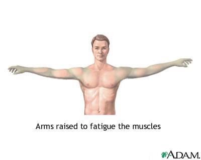Muscle fatigue: MedlinePlus Medical Encyclopedia Image