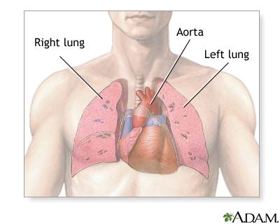 Thoracic Organs Medlineplus Medical Encyclopedia Image