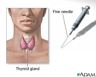 8967 How To Increase Your Thyroid Levels