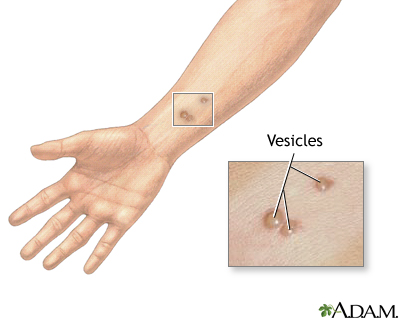 Vesicles: MedlinePlus Medical Encyclopedia