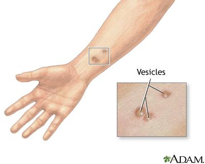 Vesicles: MedlinePlus Medical Encyclopedia Image