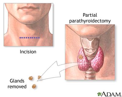 Parathyroidectomy Medlineplus Medical Encyclopedia Image