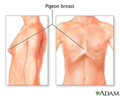Bowed chest (pigeon breast): MedlinePlus Medical Encyclopedia Image