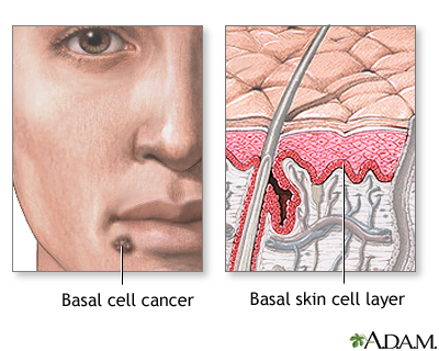 basal cell skin cancer: medlineplus medical encyclopedia, Human Body