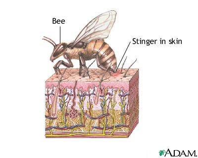 Bee sting: MedlinePlus Medical Encyclopedia Image