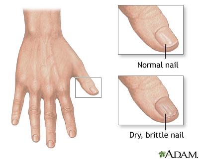 Brittle Nails MedlinePlus Medical Encyclopedia Image