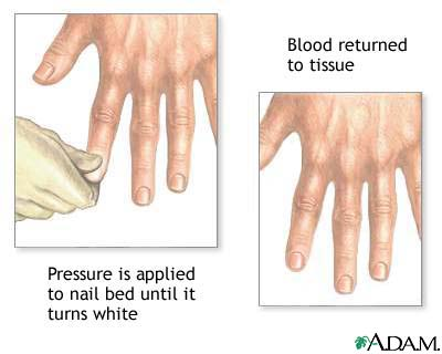 Nail blanch test