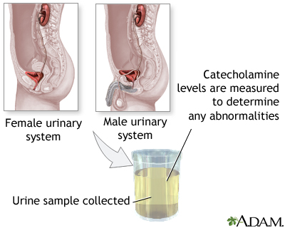 Catecholamine urine test