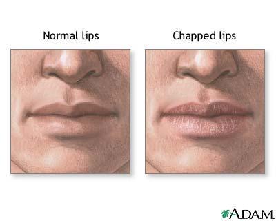 White spots on lips dry cracking