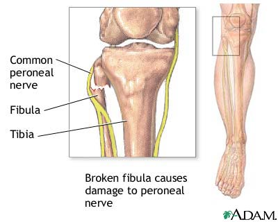 Common peroneal nerve dysfunction: MedlinePlus Medical ...