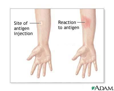 CSD skin test