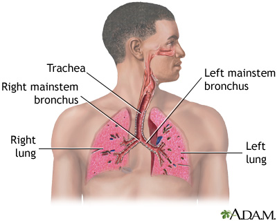 Pneumonia - adults (community acquired): MedlinePlus Medical