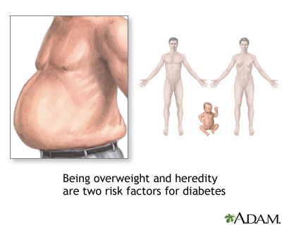 Diabetes risk factors: MedlinePlus Medical Encyclopedia Image