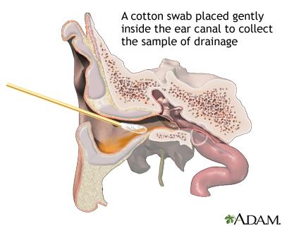Ear drainage culture
