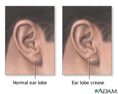Ear lobe crease