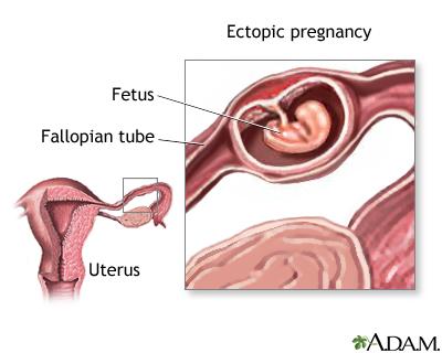 Ectopic pregnancy 9288