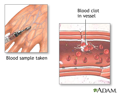 Blood clots (fibrin clots) are the clumps that result when blood coagulates.