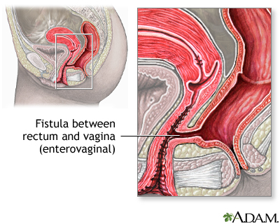 Anal fistulas and crohns disease