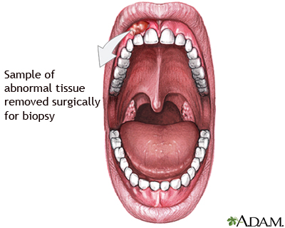 Gum biopsy: MedlinePlus Medical Encyclopedia Image