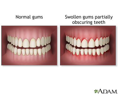 Swollen gums: MedlinePlus Medical Encyclopedia Image