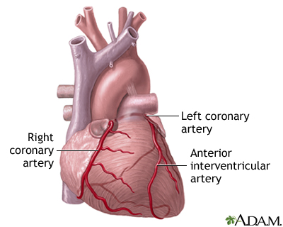 Anterior heart arteries: MedlinePlus Medical Encyclopedia Image
