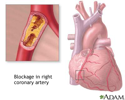 Coronary artery blockage: MedlinePlus Medical Encyclopedia Image
