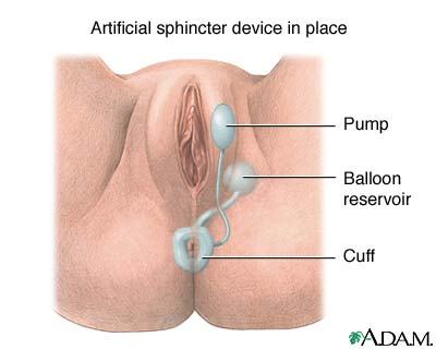 artificial anal sphincter