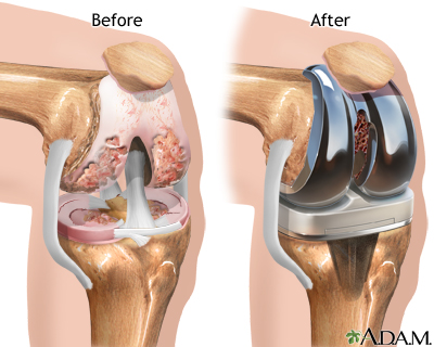 knee joint replacement: medlineplus medical encyclopedia, Muscles