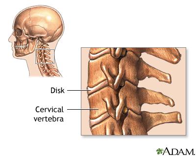 cervical vertebrae: medlineplus medical encyclopedia image, Skeleton