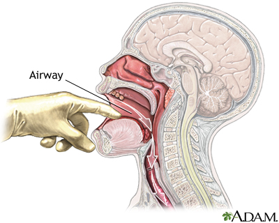 Check airway