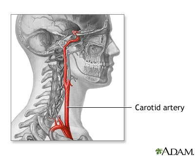 Carotid Artery Anatomy Medlineplus Medical Encyclopedia Image