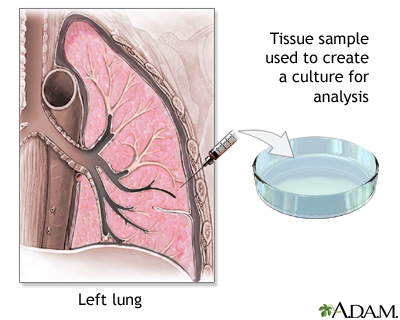 Lung tissue biopsy